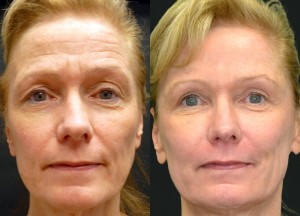 Laser resurfacing, fillers, botox, upper blepharoplasty, fat grafting before and after pictures
