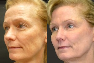 Laser resurfacing, fillers, fat grafting, and Botox before and after pictures