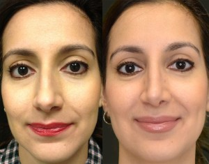 3020 Rhinoplasty - Before & 1 Month After (1)