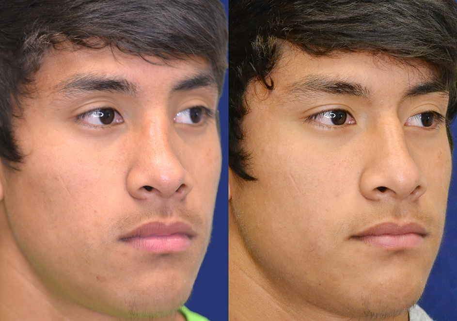 Broken Noses Before And After Broken Nose Closed Reduction