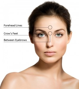 Different Botox Areas | Botox treatment injections