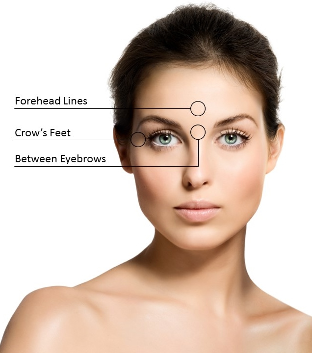 different botox areas botox treatment injections