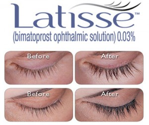 Treatment for Inadequate Eyelashes
