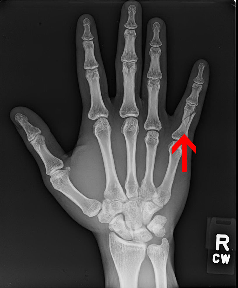 Hand Fractures Treatment And Surgery Specialists In Northern Va